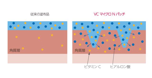 ビタミンCマイクロニードルパッチの浸透のメカニズム